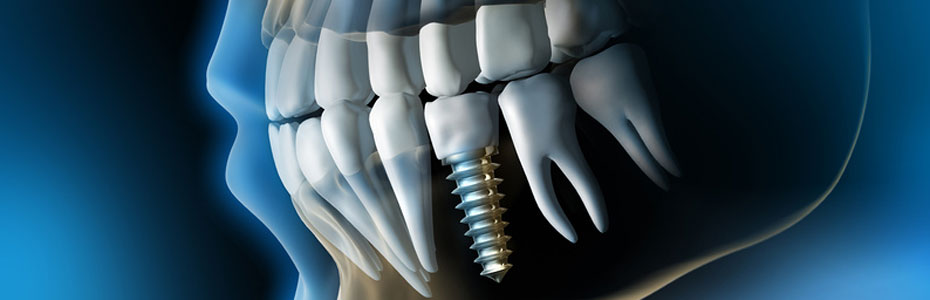 implant-courses-usa